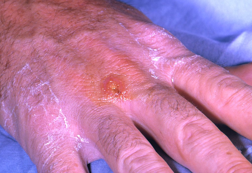 A Tularemia lesion on the dorsal skin of the right hand, caused by the bacterium Francisella tularensis.